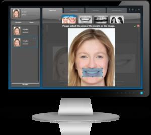 Mosolytervezés 2D-ben: a személyre szabott esztétikai fogászat