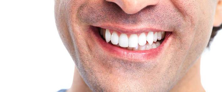7 fontos tudnivaló az implantátumról