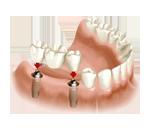 bridge-sur-implants-slider2