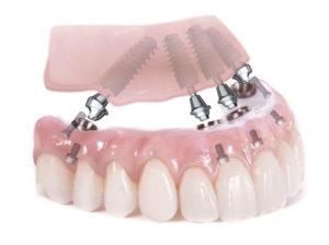 All-on-4: teljes fogpótlás 4 implantátumon