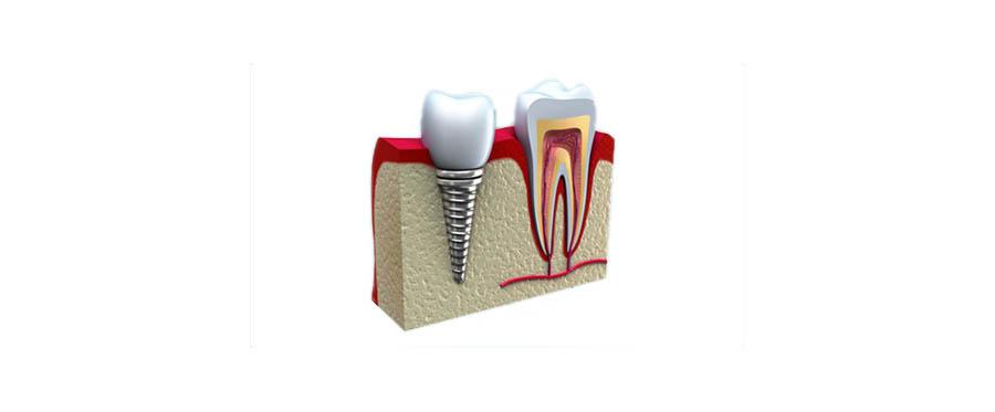 Melyiket válasszam? A gyökérkezelést vagy a foghúzást és implantátumot?