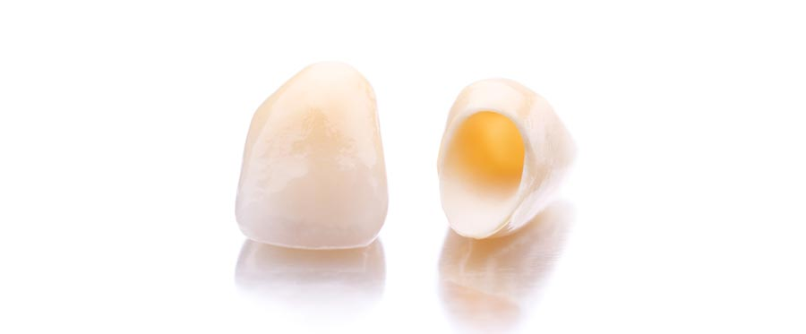 5 gyakori kérdés a koronákról, amit a fogorvosnak nem mer feltenni