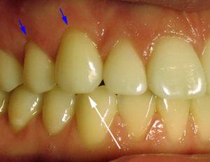 fogcsikorgatás