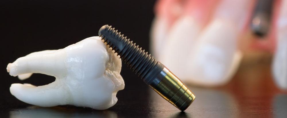 Mi a különbség a fogászati implantátumok között?