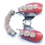 Rögzített híd az elülső fogakra + kivehető, kétoldali kapcsos fogsor