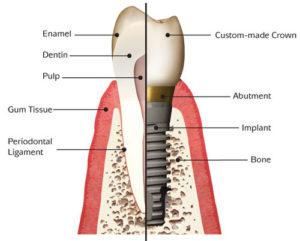 Implantátumos fog felépítése
