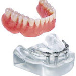 4 implantátum + stég + kivehető fogsor