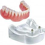 2 implantátum + lokátor + kivehető fogsor