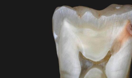 A fogszuvasodás jelei