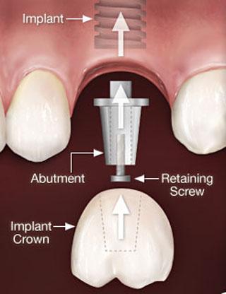 Ragasztott korona az implantátumon