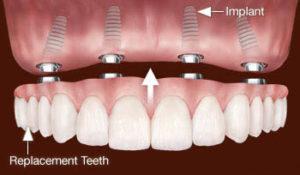 All-on-4 – Fix híd 4 implantátumon