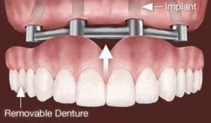 implantátumokon rögzített kivehető protézis