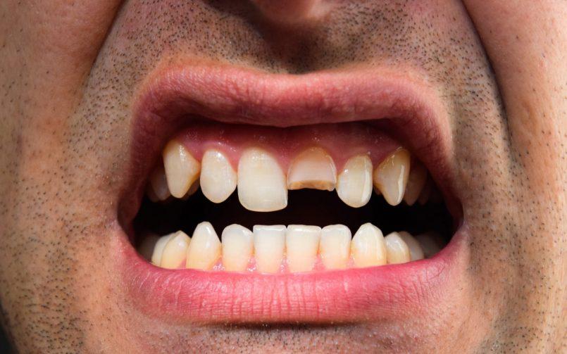 Letört a fogam és nagyon fáj. Menthető még?