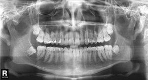 bölcsességfog röntgen