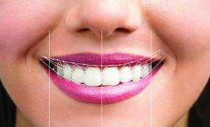 Esztétikai fogászat, Mosolytervezés, Teljes kerámia héjak és koronák